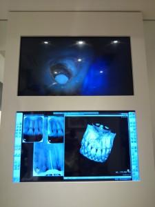 歯内療法のMTAの写真