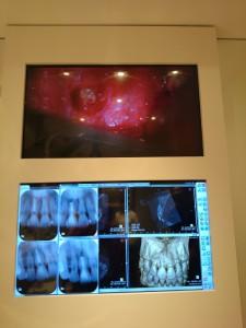 歯根端切除術の歯の先っぽ