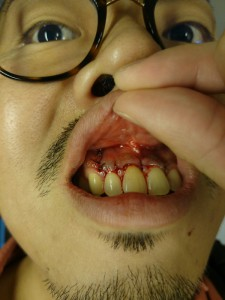 歯根端切除術後の写真