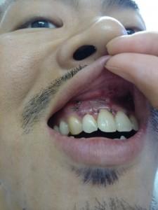 歯根端切除術の術後1日目の写真