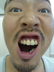 歯根端切除術の翌日の写真
