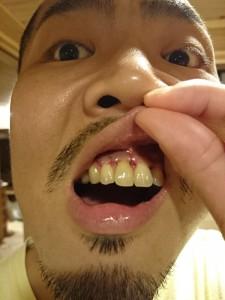 歯根端切除術4日目の写真