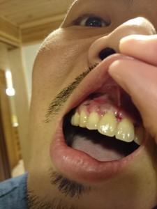 歯根端切除術:術後3日目の写真