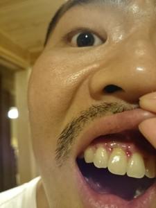 歯根端切除術の抜糸した写真